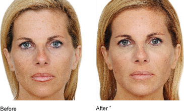 Dermal Fillers (Restylane / Emervel / Juvederm / Princess