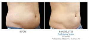 coolsculpting-abdomen-male-1-0