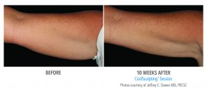 coolsculpting-arms-1-0