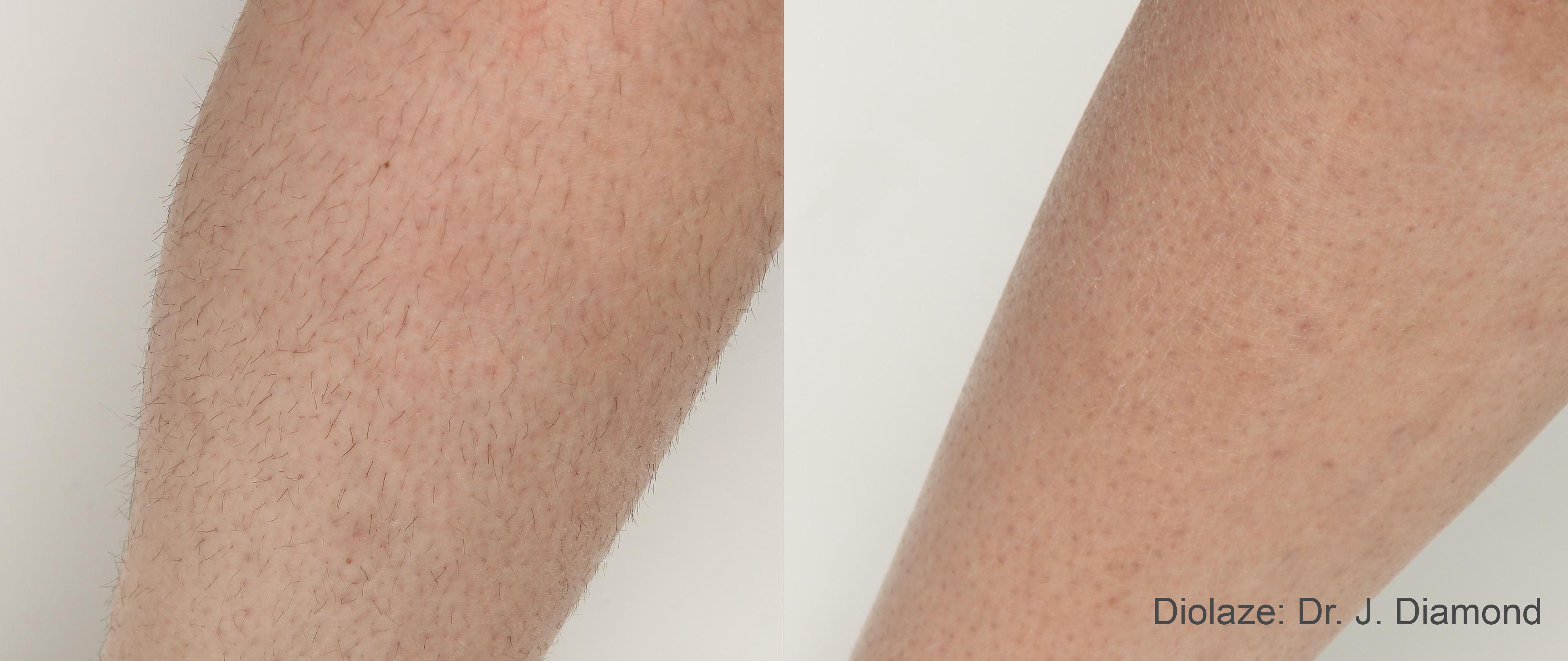 Laser Hair Removal Laser Advantage